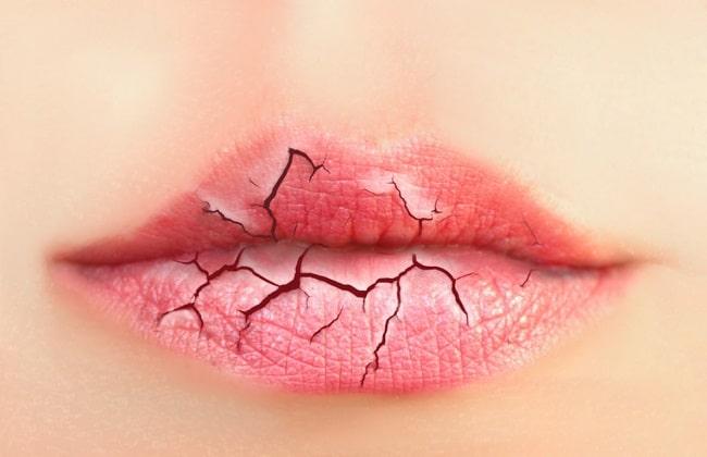8 Consejos para proteger las manos y los labios del frío.