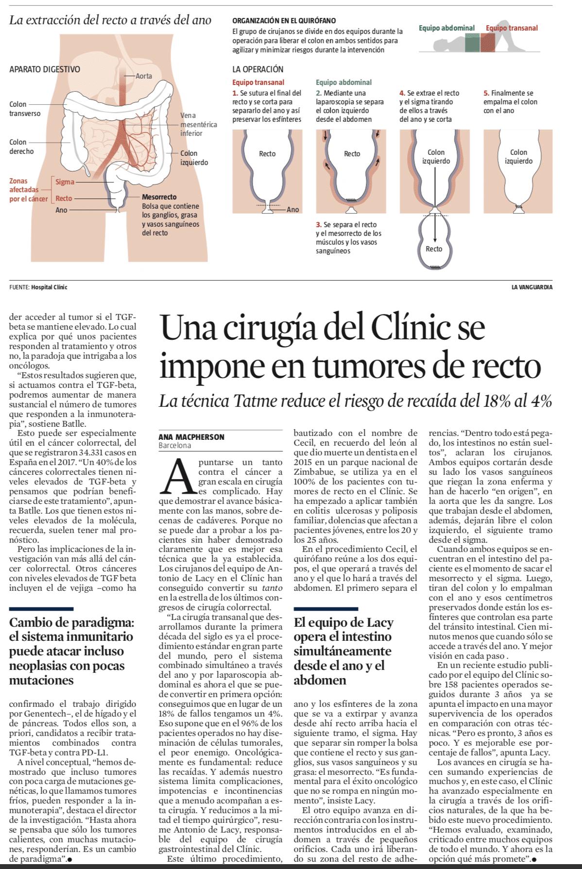 Cirugía del cáncer de colon