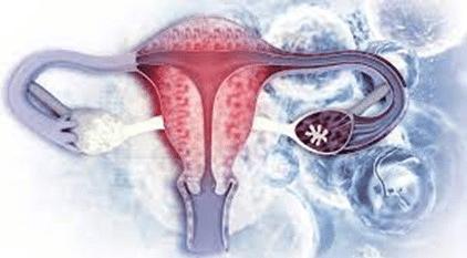 Miomas uterinos. Imagen del útero